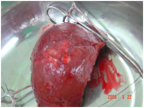 Specimen Showing Desected Gallbladder cancer