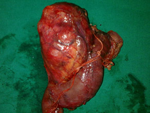 LLarge solid pseudopapillary tumor in pancreatic head