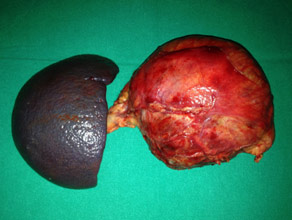 Specimen of Large cystic tumor in pancreatic body