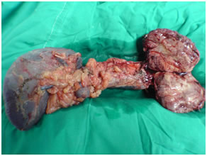 Specimen of Solid pseudopapillary tumor in pancreatic body