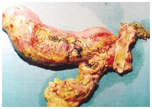 Specimen of radical bile duct excision